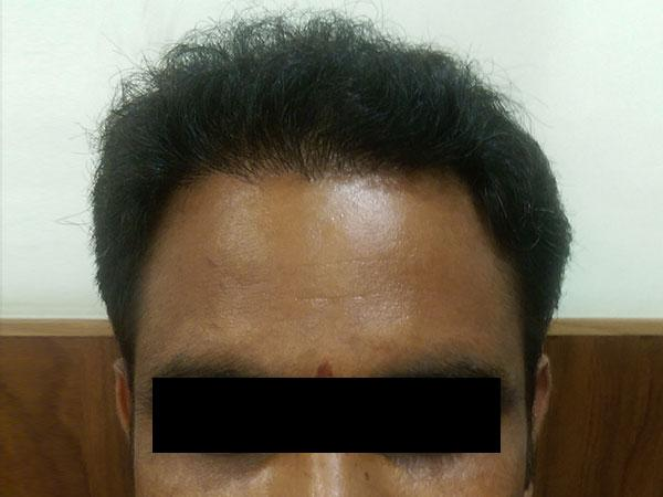 Hair Transplant After Treatment