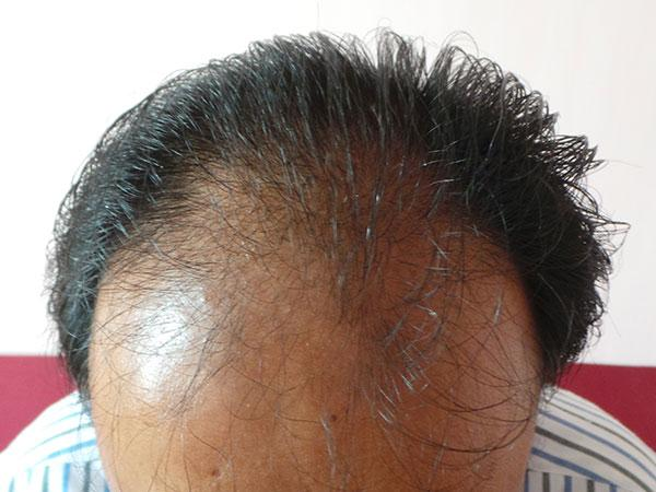 Hair Transplant Before Treatment