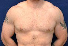 Body Coolsculpting After Treatment