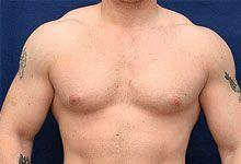 Body Coolsculpting Before Treatment