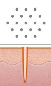 Laser Peel & Acne Scar Treatment