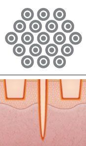 Laser Peel & Acne Scar Treatment