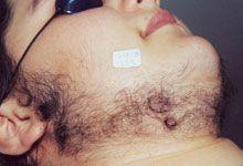 Before Hair Removal Laser Treatment