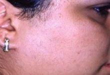 After Hair Removal Laser Treatment