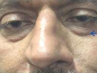 Before Laser Peel & Acne Scar Treatment