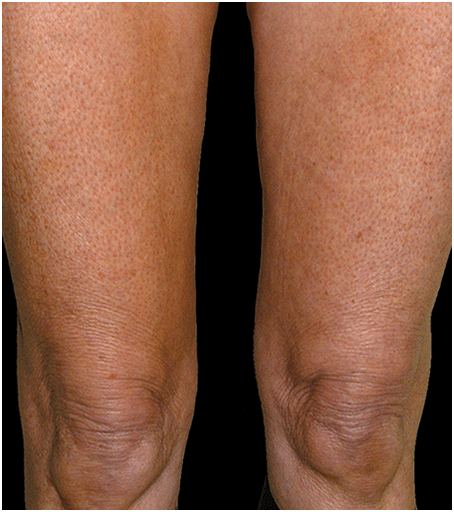 After Thermage Skin Tightening Treatment