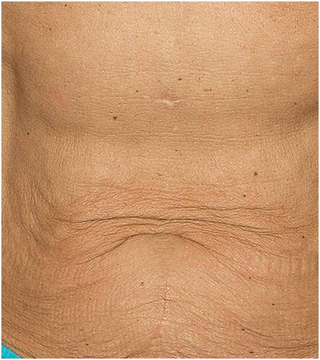 Before Thermage Skin Tightening Treatment